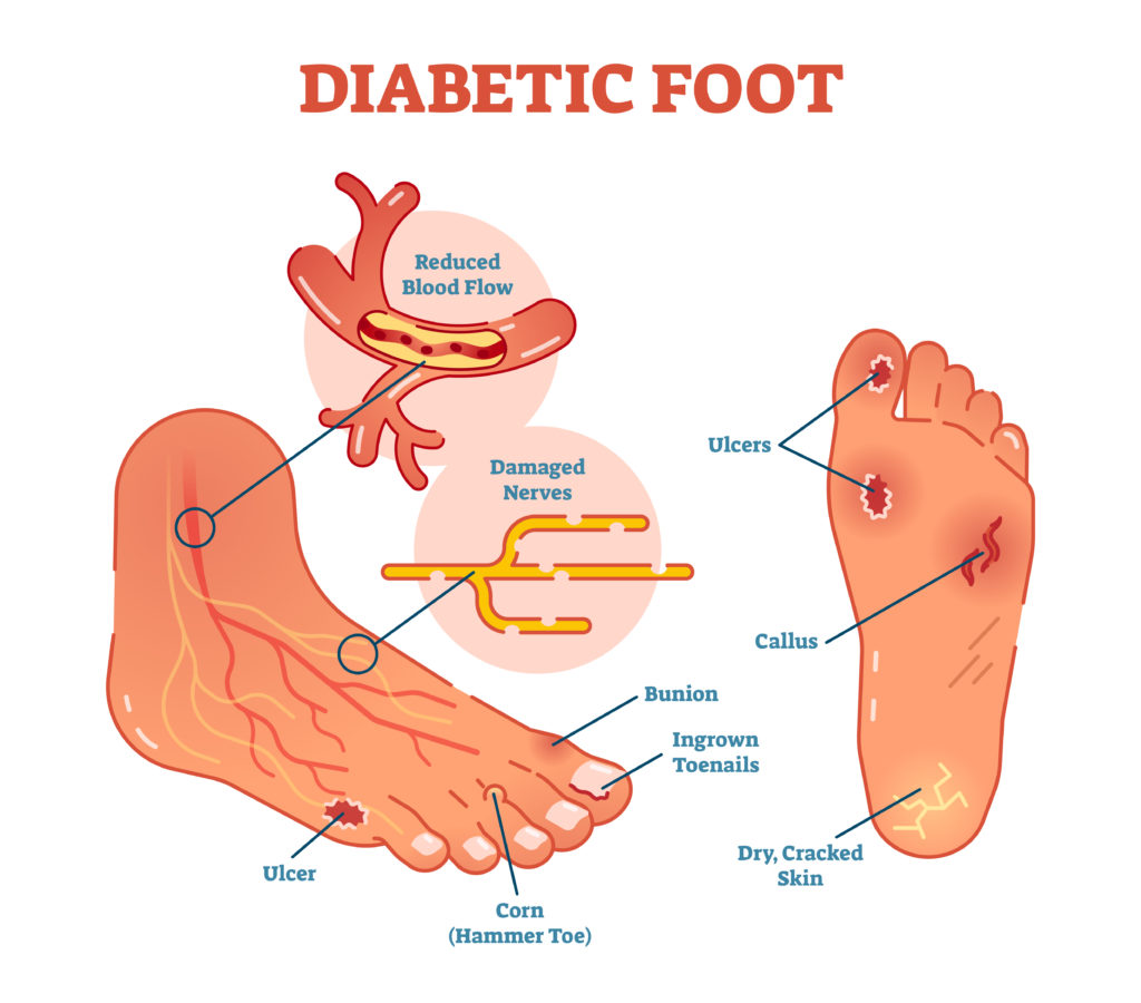 Diabetic Foot Care Peninsula Podiatry Foot And Ankle Specialist